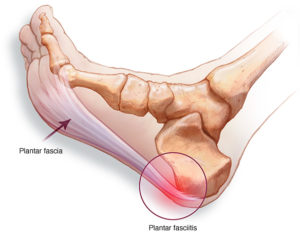plantar fasciitis treatment adelaide mike smith
