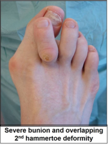 Bunion and hammer toe deformity