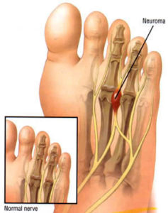 Dr Mike smith orthopaedic surgeon adelaide ball of foot pain treatment