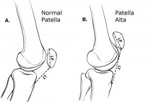 Dr Mike Smith Orthopaedic surgeon adelaide patella dislocation