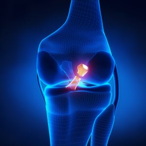 dr. mike smith orthopaedic surgeon adelaide acl reconstruction