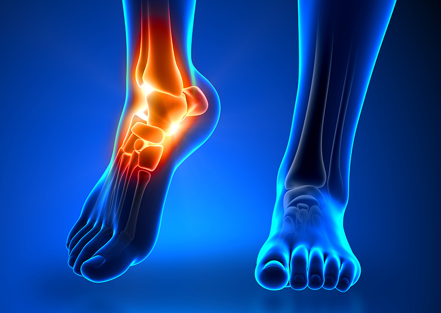 Ankle Surgeon in Adelaide