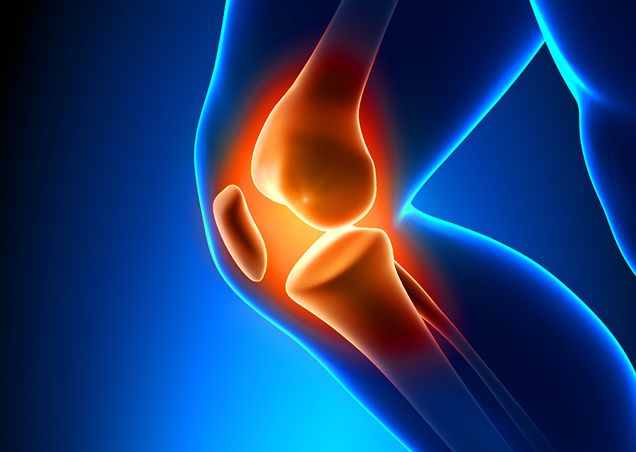 Knee surgeon in Adelaide