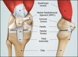 Dr Mike Smith orthopaedic surgeon adelaide MPFL knee Patella dislocation surgery