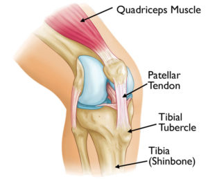 dr mike smith orthopaedic knee surgeon adelaide Patella dislocation surgery
