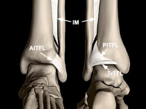 Syndemosis ankle ligaments dr mike smith