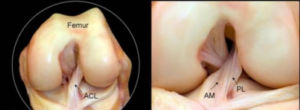 ACL anatomy best image acl reconstruction adelaide knee specialist