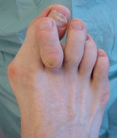 Mike smith adelaide orthopaedic surgeon bunion surgery hammer toe best photo treatment