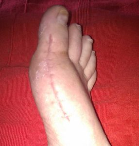 Mike smith adelaide orthopaedic surgeon bunion surgery traditional best photo
