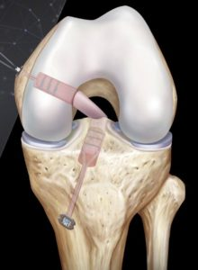PCL reconstruction adelaide knee surgeon mike smith best photo