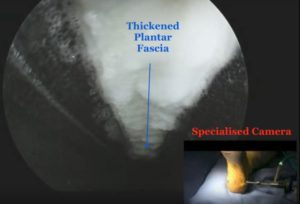Plantar fascia released via keyhole dr mike smith orthopaedic surgeon adelaide plantar fasciitis