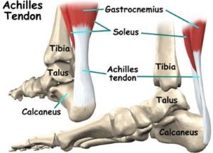 achilles tendon anatomy for achilles tendon rupture