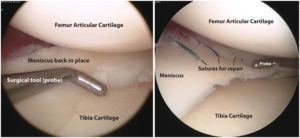 adelaide orthopaedic surgeon mike smith knee arthroscopy meniscus tear acl reconstruction best photo