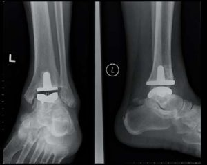 Ankle replacement w artificial joint