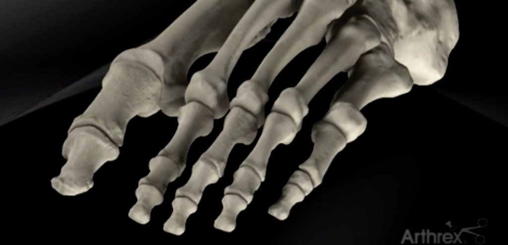 foot surgery adelaide