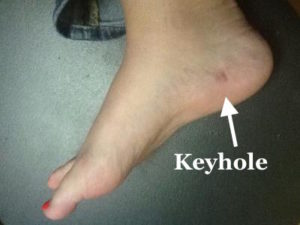 keyhole plantar fasciitis surgery dr mike smith orthopaedic surgeon adelaide best photo