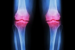 knee arthritis treatment knee replacement adelaide robotic knee surgery