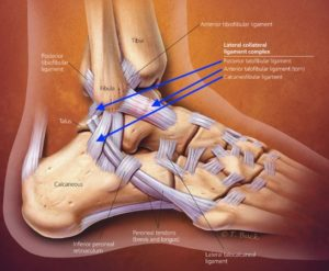 mike smith adelaide orthopaedic ankle surgeon ankle sprain ligament injury best image ankle anatomy
