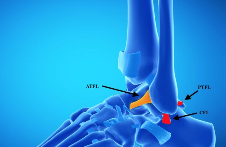 lateral ankle ligaments injured during inversion ankle sprain