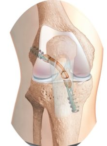 mike smith knee surgeon adelaide acl reconstruction acl rupture best image