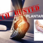 plantar fasciitis treatment myths exposed