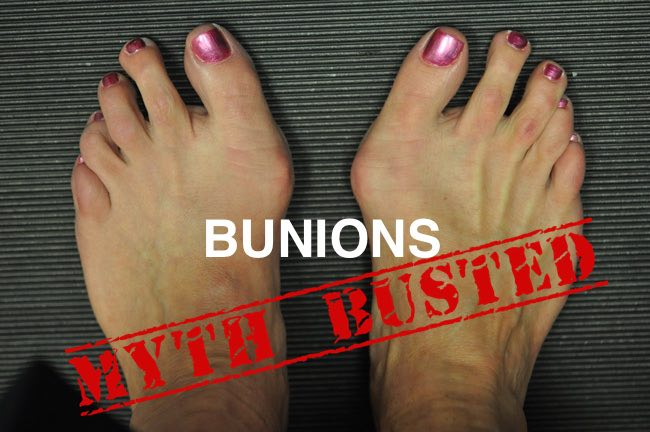 bunion treatment options myths exposed